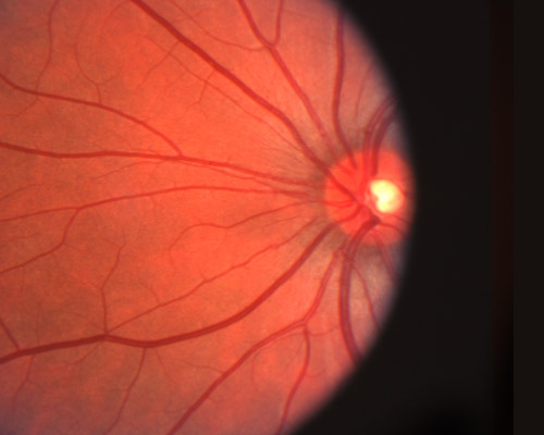 diabetes & diabetic retinopathy